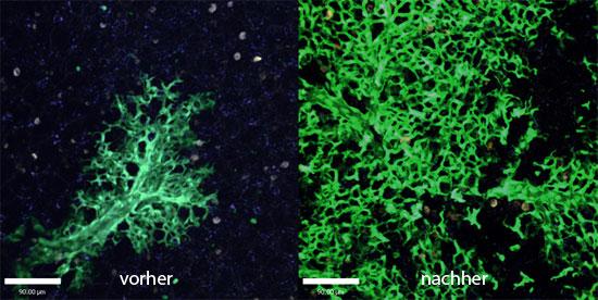 Durch Stammzellen könnten Lungenkrankheiten geheilt werden. (© Weizmann Institut)